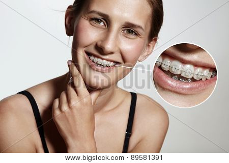 Prety Girl Is Smiling With Braces And Lens Showing Them Bigger