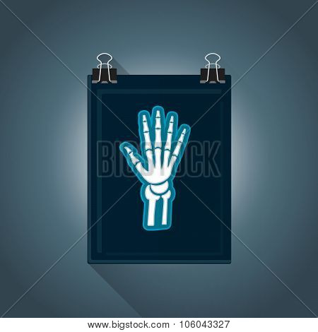 Vector Flat Radiography Illustration Icon.