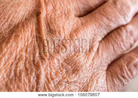 Wrinkled Skin On Hand