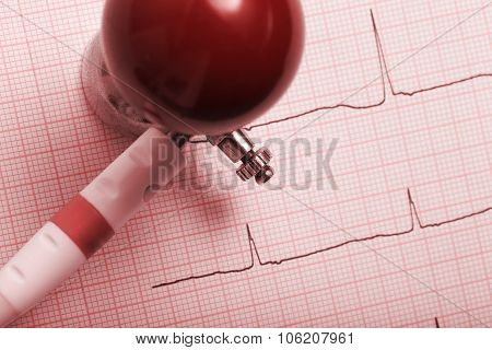 Picture Of The Patient's An Electrocardiogram