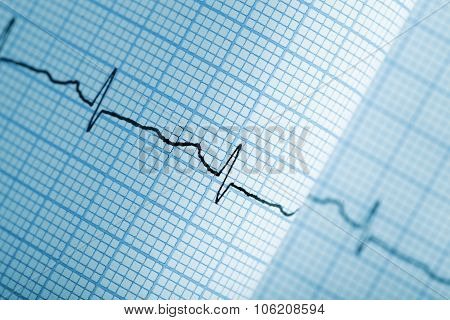 Electrocardiogram Graph On Paper