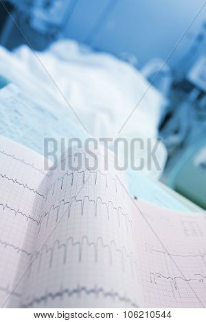 Ecg Printout Near Of Patients Bed