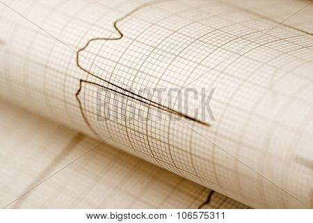 Ecg Paper Medical Background