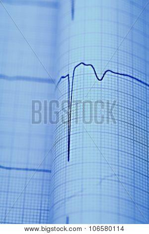Ecg Macro As A Medical Diagnostic Concepts