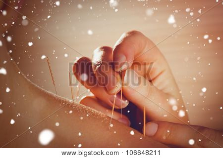 Snow against young woman getting acupuncture treatment