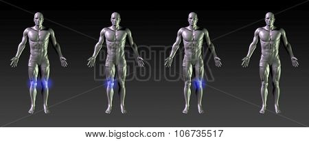 Knee Recovery or Rehabilitation with Blue Glow