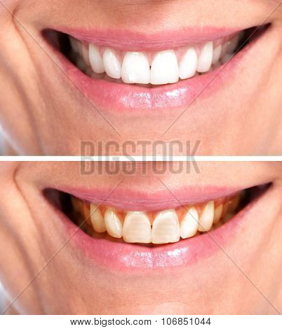 Healthy woman teeth. Dental and orthodontic health care.