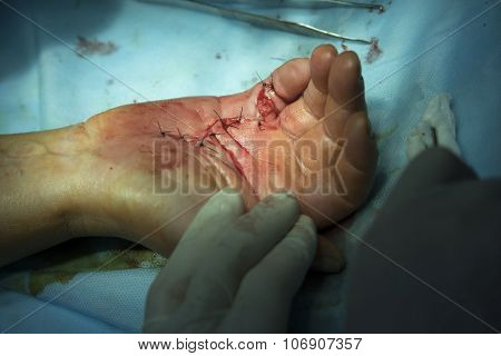 Sutures On A Hand