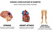 ������, ������: Chronic Complications Of Diabetes