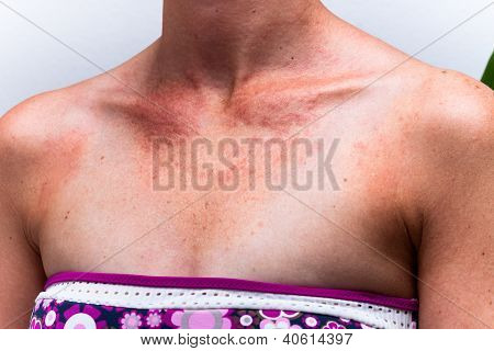 Sunburnt Female Skin With Sun Allergy