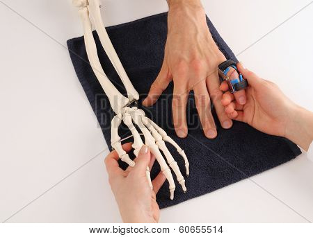 Hand Surgeon With Skeleton Hand At Patient