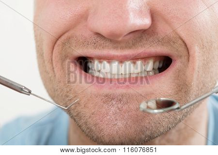 Man Having Dental Check Up