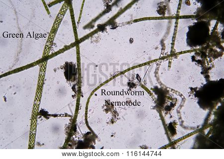 Microscopic life in fresh water pond Roundworm aka Nemotode and Green Algae photographed through a Microscope at 100 times its size. Photo taken with a DSLR Camera and a Microscope and adaptor