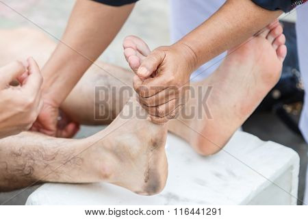 First Aid For Cramp Injury