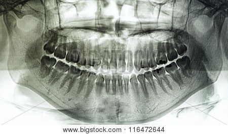 X-ray Scan Human For Teeth
