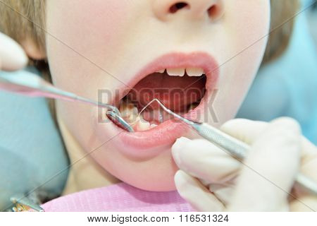 Stomatologist. Dental health. Female dentist curing a child patient in doctor's consulting room. Pediatric dentist. Medical inspection. Health care.