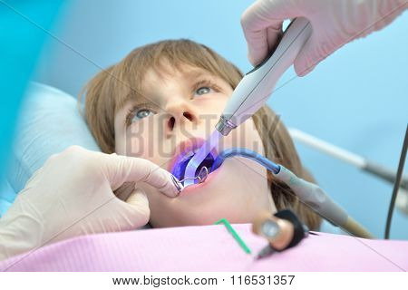Stomatologist. Dental health. Female dentist curing a child patient in doctor's consulting room. Pediatric dentist.