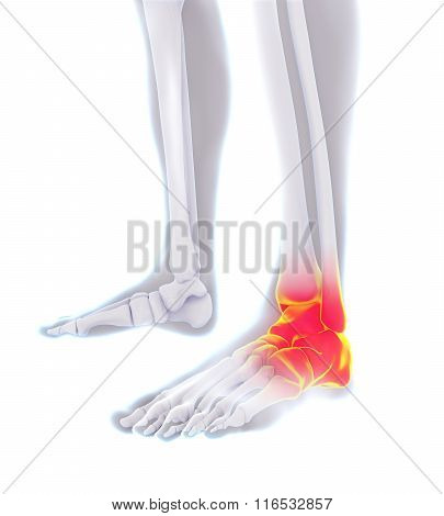 Painful Ankle Illustration