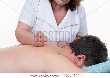 Close-up Of A Shirtless Man Getting Acupuncture Treatment
