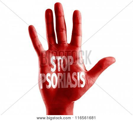 Stop Psoriasis written on hand isolated on white background