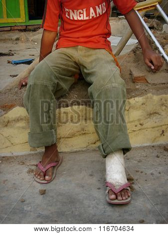 Victim of the 2006 Yogyakarta earthquake with a broken leg in a plaster caste