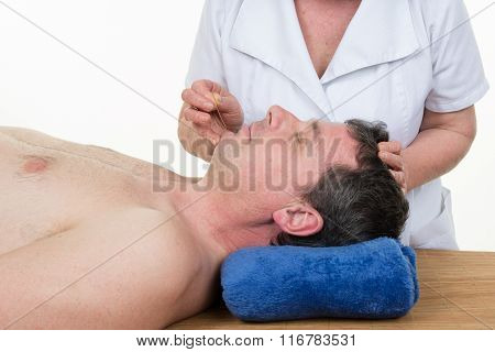 Smiling  Man In An Acupuncture Therapy In A Spa Center