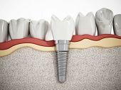 Постер, плакат: Dental Implant Detail