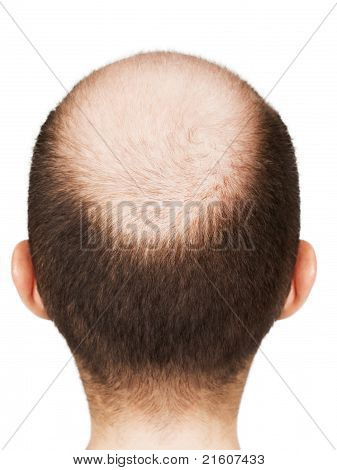 Bald Men Head