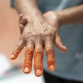Peripheral Neuropathy Pain In Elderly Ageing Patient On Hand, Palm, Fingers, Joint And Sensory Nerve poster