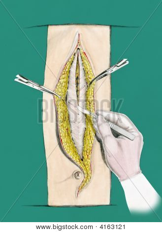 Gloved Hand And Scalpel