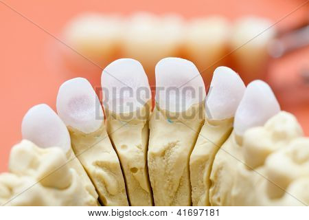 Dental Zircon / Pressed Ceramic