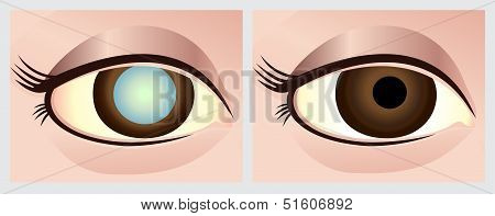 Cataract eye before and after surgery
