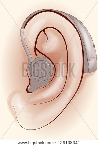 hearing aid. human ear with a hearing aid