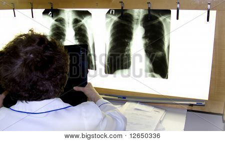 A doctor examines an xray film lung cancer