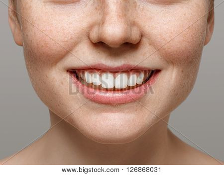 Healthy Smile. Teeth Whitening. Beautiful Woman.