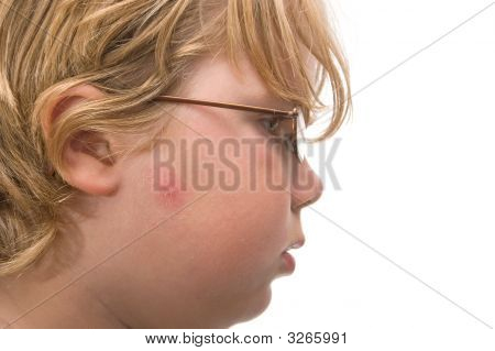 Boy With Acne