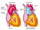stock photo of atherosclerosis  - medical illustration of a thoracic aortic aneurysm surgery - JPG