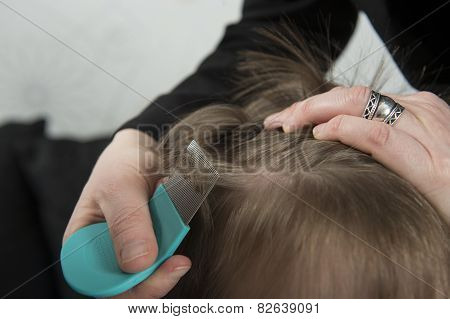 Checking For Lice