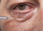 foto of collagen  - Treatment with botox or hyaluronic collagen HA injection - JPG