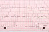image of electrocardiogram  - Electrocardiogram ekg heart rhythm on pink grid - JPG