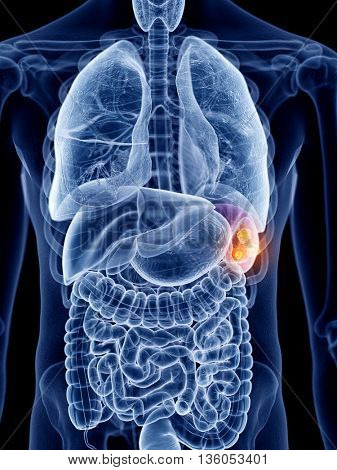 3d rendered, medically accurate illustration of spleen cancer