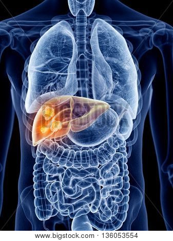3d rendered, medically accurate illustration of liver cancer