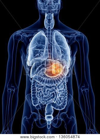 3d rendered, medically accurate illustration of stomach cancer
