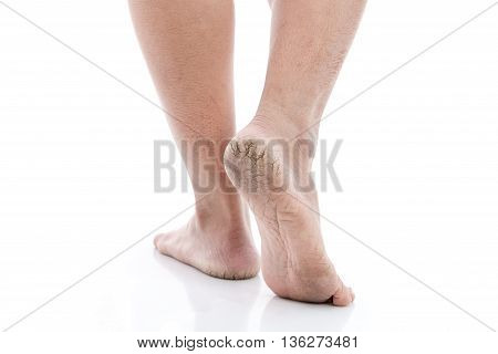 Close up of Cracks on Heels isolated white background