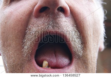 The Mouth of the person with sick teeth.Open mouth without teeth