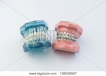 Model of human jaw with wire braces attacheg Dental and orthodontic office presentation on white background.