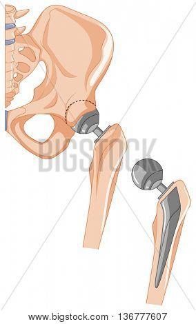 Diagram of hip bone treatment illustration