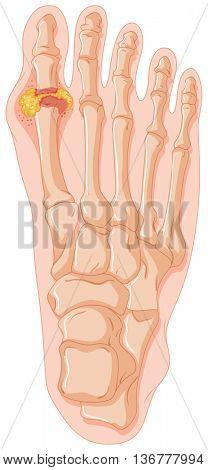 Diagram showing gout toe illustration
