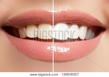 Macro Happy Woman's Smile With Healthy White Teeth, Bright Pink Lips Make-up
