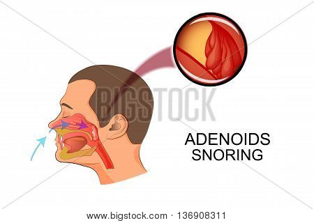 illustration adenoids as causes of snoring. hypertrophy.